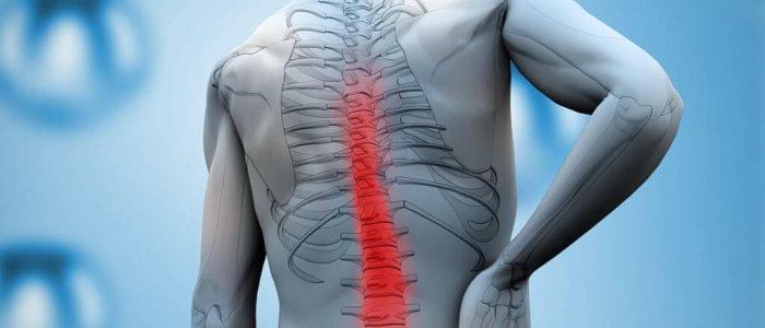 Dimexid arthritisben