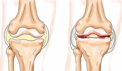 kezdődik a kézkezelés artrózisa térdfájdalom emeléskor