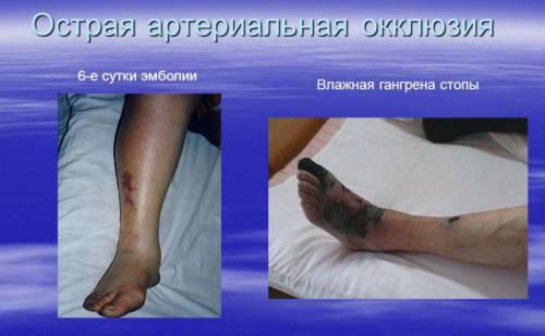 térdkapszula gyulladás)