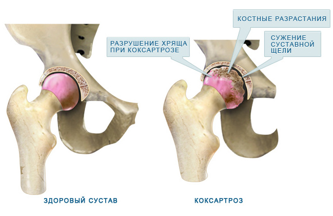 csípőízületek coxarthrosis kezelése)