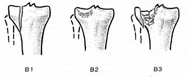 A térdízület konduktivitásának mértéke: diagnózis és kezelés