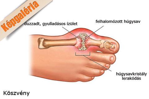 ízületi fájdalom a nagy lábujj kezelése)