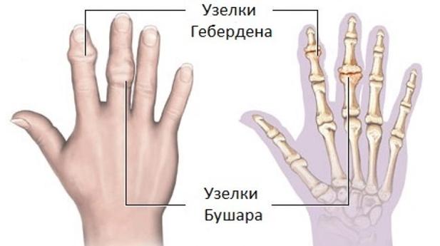 Az ujjak ízületein lévő kupakok - a kezelés okai és módszerei - Könyök July