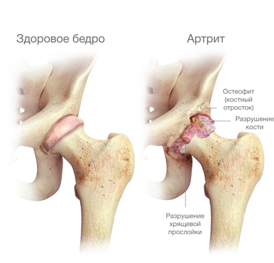 hosszan járó fájdalom a csípőízületben