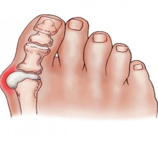 a nagy lábujj kenőcsének kezelése erősítse a térdízületet