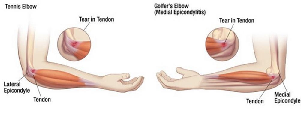 könyökízület artrózisának 1 fokos tüneteinek kezelése)