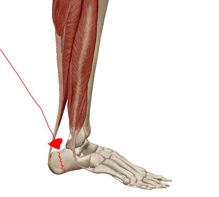 boka feletti csont fájdalom