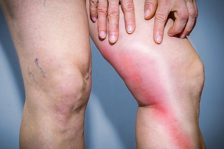 a csuklószalagok gyulladásának kezelése)