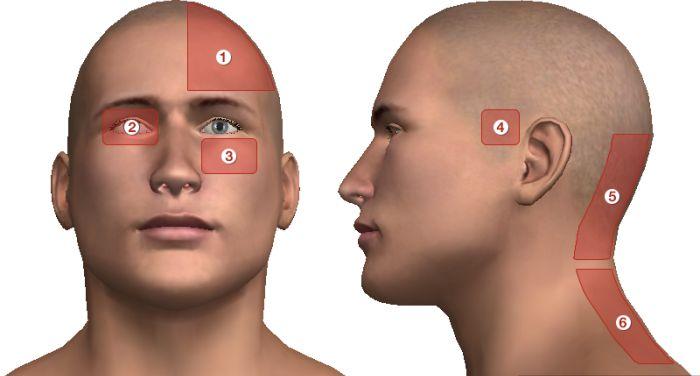 mi okoz fejfájást