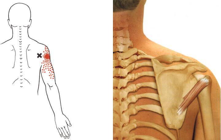 hogyan lehet kezelni a jobb vállízület osteochondrozist)