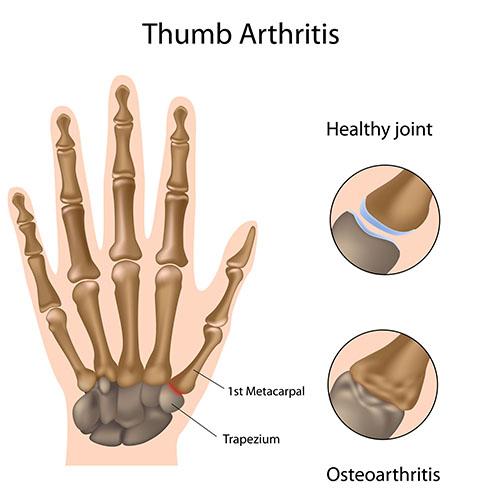 arthrosis arthrosis