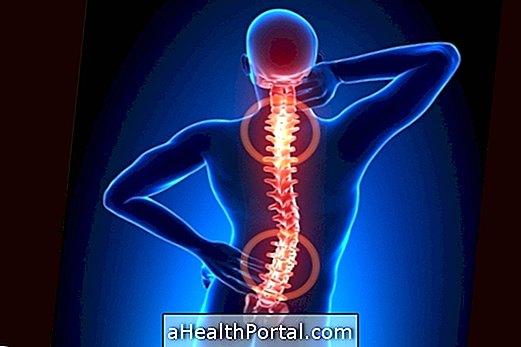 nyaki gerinc kezelés spondylarthrosis artrosis