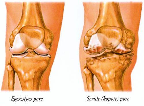 kezelés spanyol ízületekben mi okoz fájdalmat a lábak ízületeiben