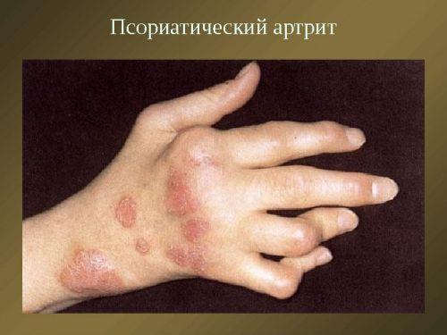 Fájnak az ujjai? Ez állhat a háttérben! - Alma Magazin - Alma Gyógyszertárak