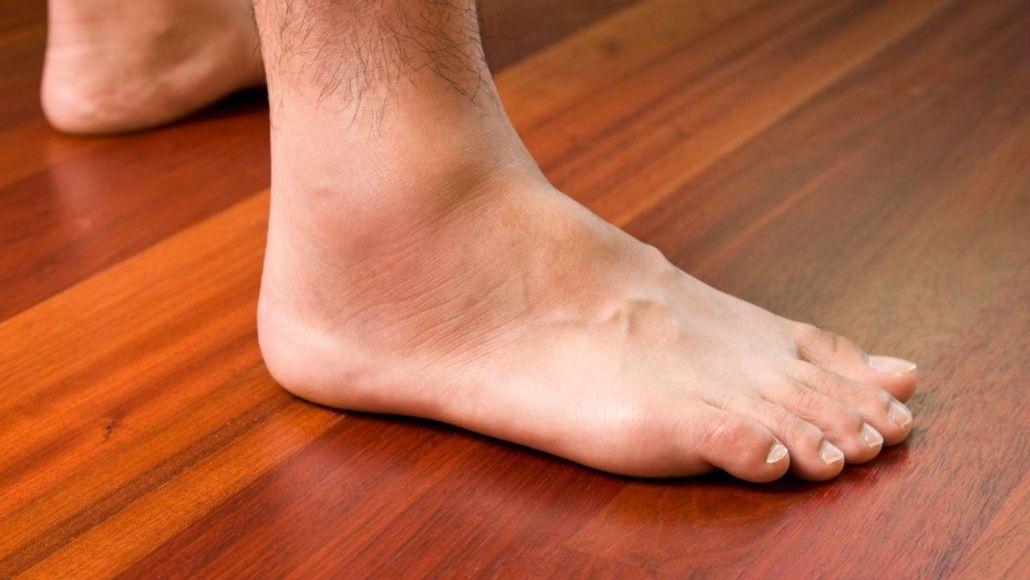osteoarthritis duzzadt lábak kezelése)