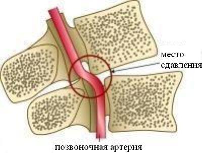 név kenőcs a nyak osteochondrozisa esetén