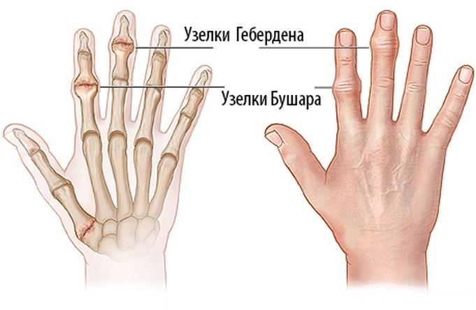 a gerinc ízületeinek deformáló artrózisa mi a térdízület artrózisa 3 fok