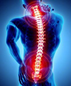 Milyen okai lehetnek a hátfájdalomnak? | Gyógyszer Nélkül