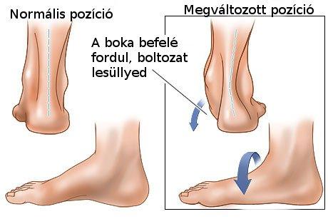 jogging lábízület)