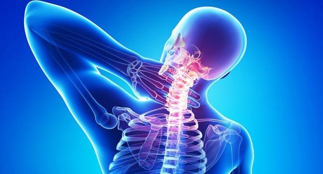 Hernia C6 C7 nyaki Osteochondrosis a méhnyakban