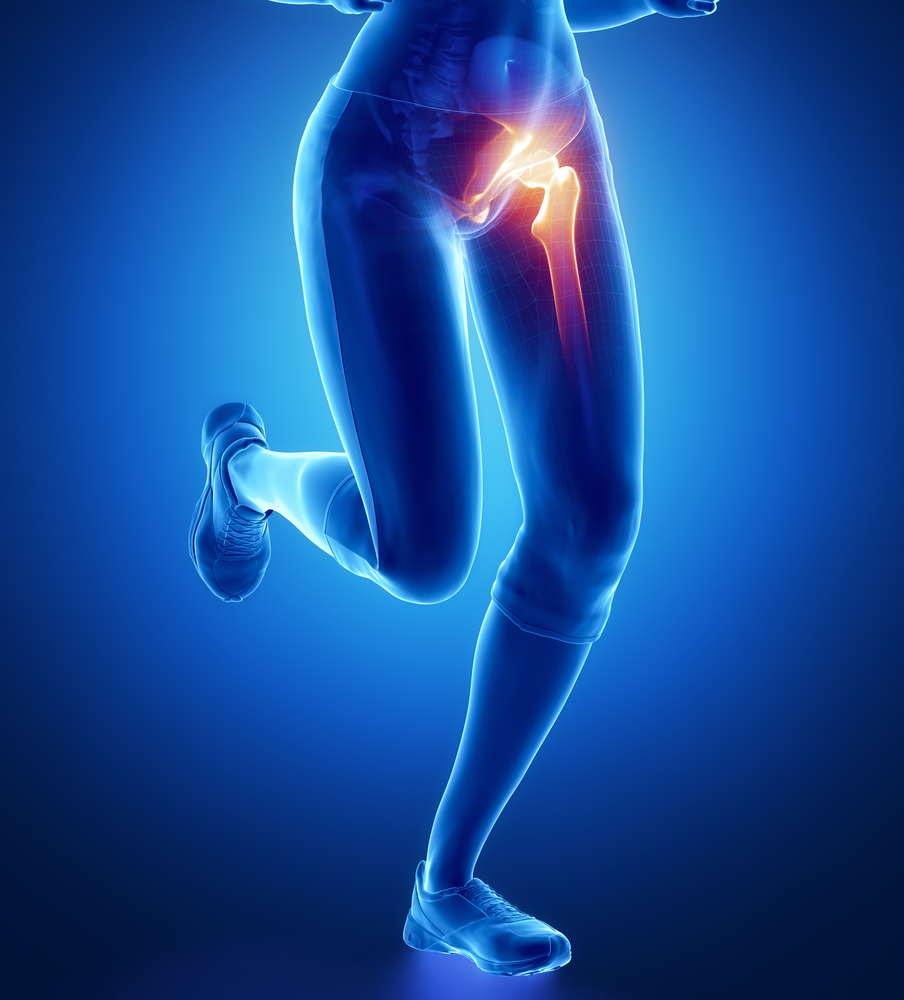 amikor felmerül a csípőízület fájdalma
