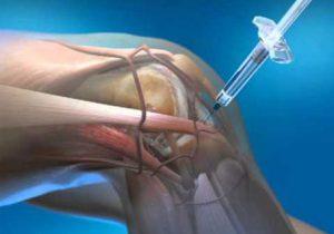 gyógyszerek artrózis vagy ízületi gyulladás kezelésére)