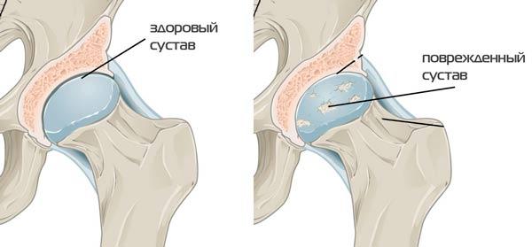csípőízület artrózisa 3. fokozat mi ez