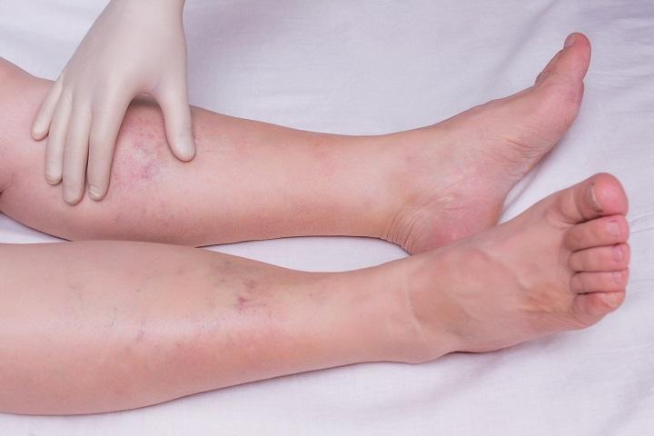 a bokám megdagadt és fáj
