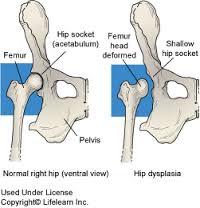 módszerek a csípő dysplasia kezelésére