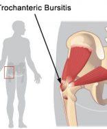 a csípőízület bursitisének hatékony kezelése