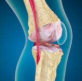 a csípőízületi kezelés kezdeti stádiuma