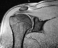 a könyökízület 1. fokú deformáló artrózisa