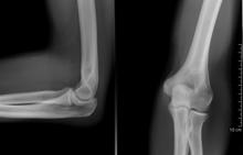 a csípőízület artrózisa 1 fokos kezelési fórum ízületi fájdalom éjjel, mit kell tenni