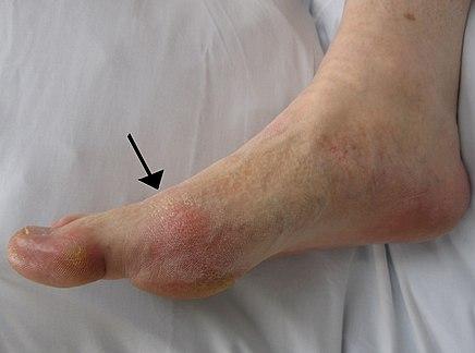 a nagy lábujj ízületi gyulladása, mint a kezelésére)