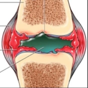a térd szalaggyulladás ízületi gyulladása