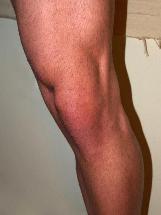 Térdízület meniszkusz törése - A lábak ízületei miért fájnak