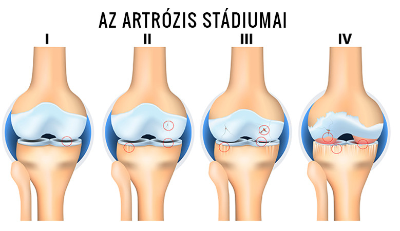 a térdízületi tünetek artrózisának kezelése kezelést okoz)