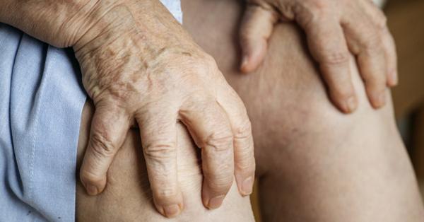 nem deformált boka artritisz