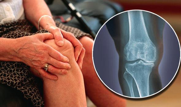 a derékközi csigolyák ízületi artrózisa