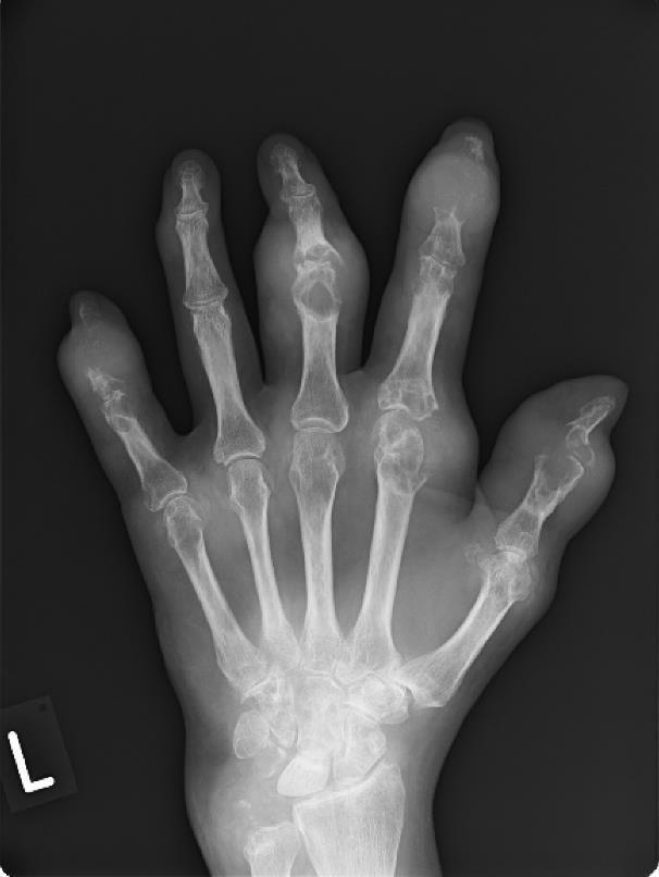 hogyan lehet gyorsan eltávolítani a kézízületek gyulladását)