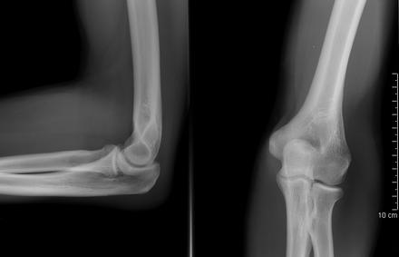 a könyökízület izom sérülése fájdalom a vállízület kapszulitiszében mi ez