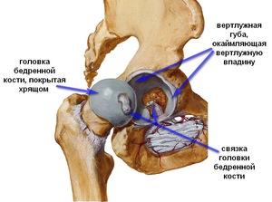 csípőfájás a láb elrablása során)