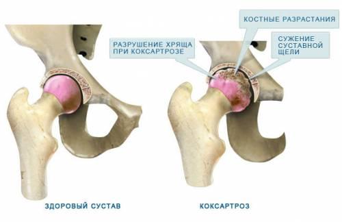 fájdalomcsillapító kenőcsök a csípőízület coxarthrosisához