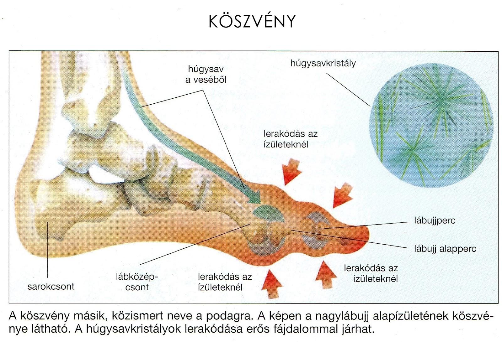 a lábujj falának ízületi gyulladása)