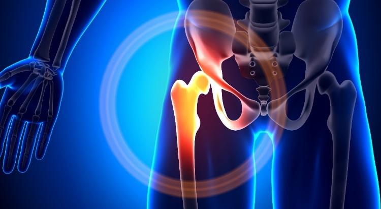 aki kezeli a csípőízület ízületi gyulladását