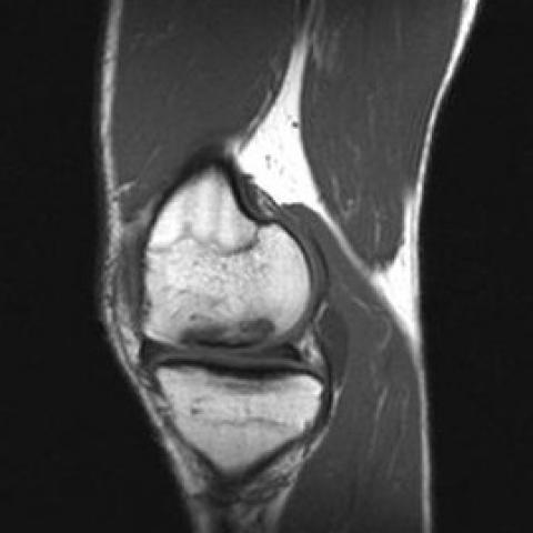 osteochondritis dissecans knee mri)