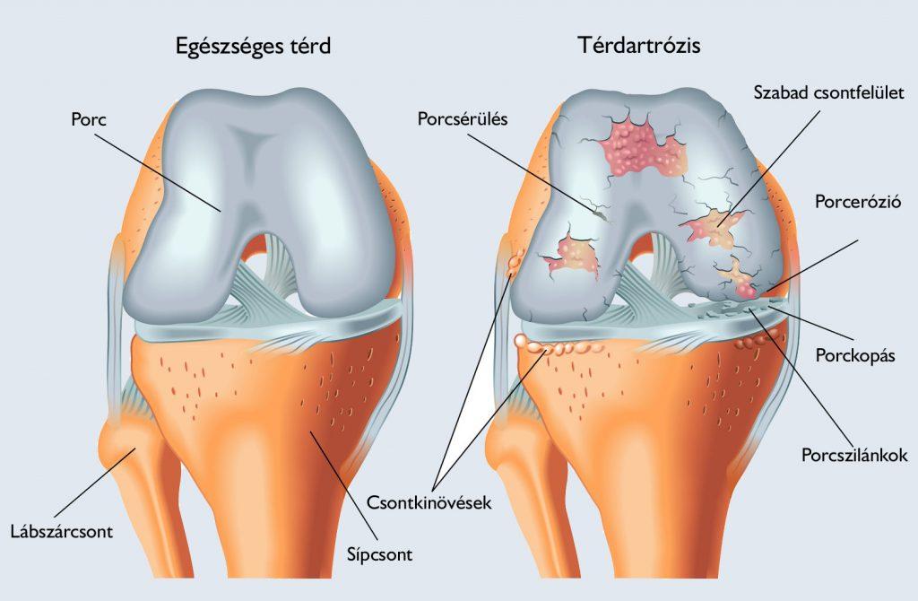 a térd oldalsó ízületeinek sérülése