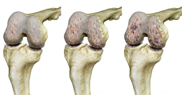 ahol a legjobb módszer a térd artrózisának kezelésére