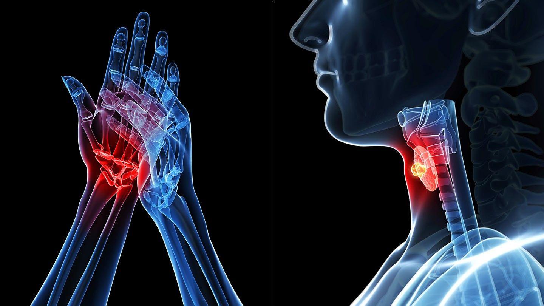 arthritis és arthrosis orvoslás vásároljon ozokeritet ízületi kezeléshez