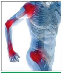 arthrosis arthritis kenőcs kezelése)